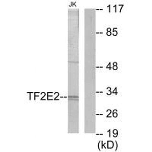 GTF2E2 Rabbit anti-Human, Mouse, Polyclonal, Invitrogen 100 µL; Unconjugated