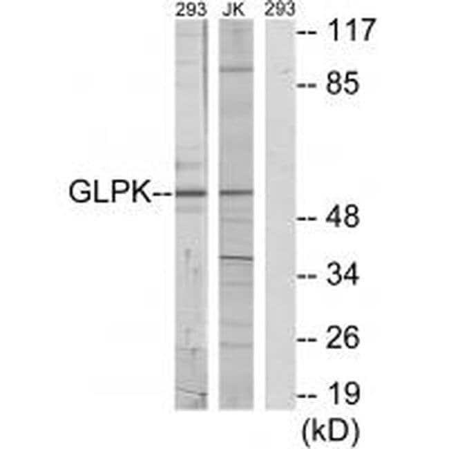 Glycerol kinase Rabbit anti-Human, Mouse, Rat, Polyclonal, Invitrogen 100