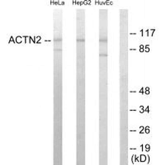 alpha Actinin 2/3 Rabbit anti-Human, Mouse, Rat, Polyclonal, Invitrogen