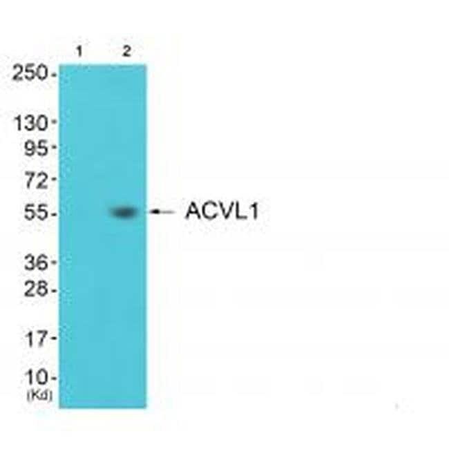 ACVRL1 Rabbit anti-Human, Mouse, Rat, Polyclonal, Invitrogen 100 µL;