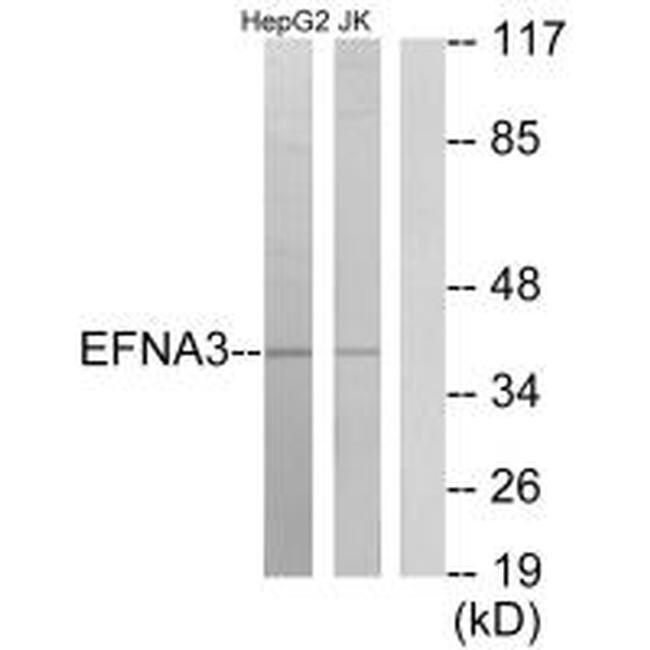 Ephrin A3 Rabbit anti-Human, Mouse, Rat, Polyclonal, Invitrogen 100 µL;