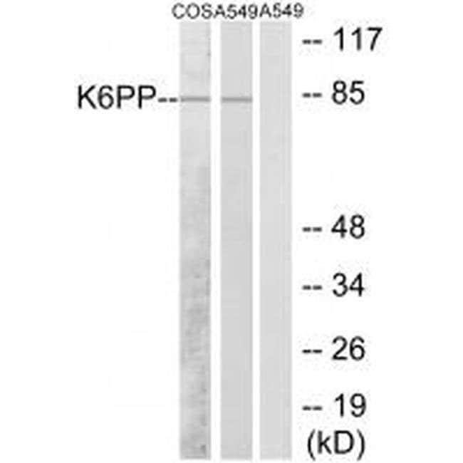 PFKP Rabbit anti-Human, Mouse, Rat, Polyclonal, Invitrogen 100 µL;