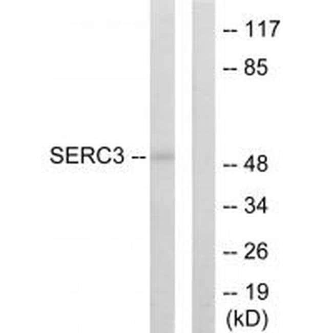 TDE1 Rabbit anti-Human, Mouse, Rat, Polyclonal, Invitrogen 100 µL;