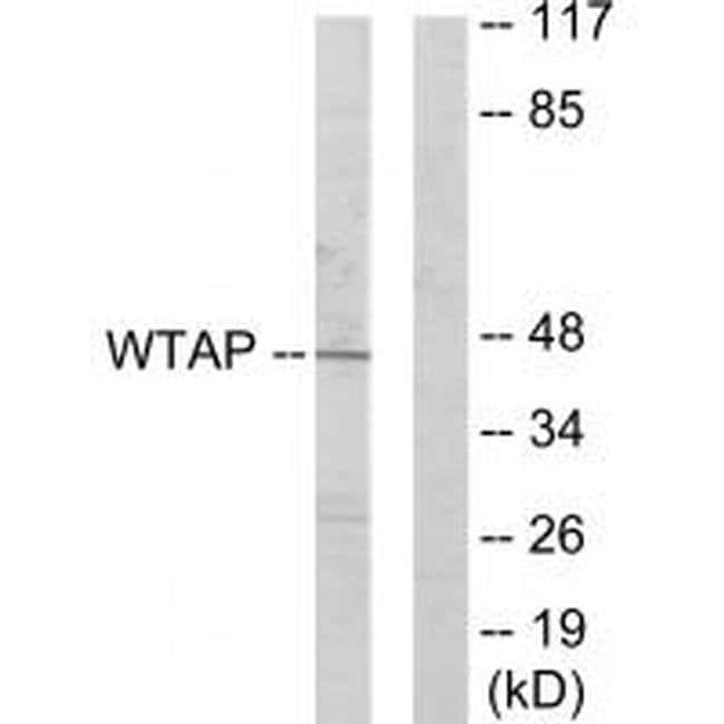 WTAP Rabbit anti-Human, Mouse, Polyclonal, Invitrogen 100 µL; Unconjugated