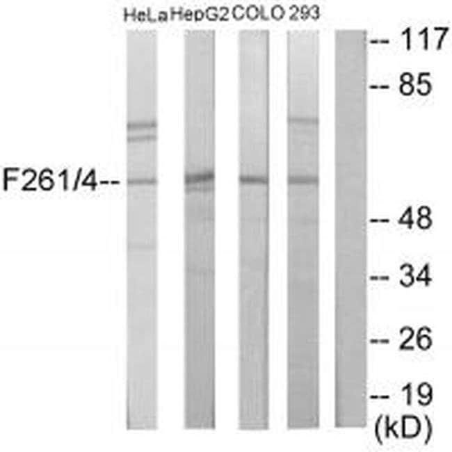 PFKFB1 Rabbit anti-Human, Mouse, Rat, Polyclonal, Invitrogen 100 µL;