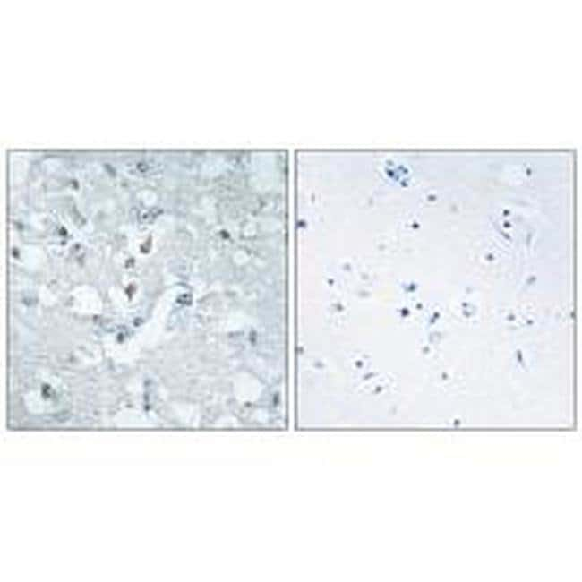 GLYCTK Rabbit anti-Human, Mouse, Rat, Polyclonal, Invitrogen 100 µL;