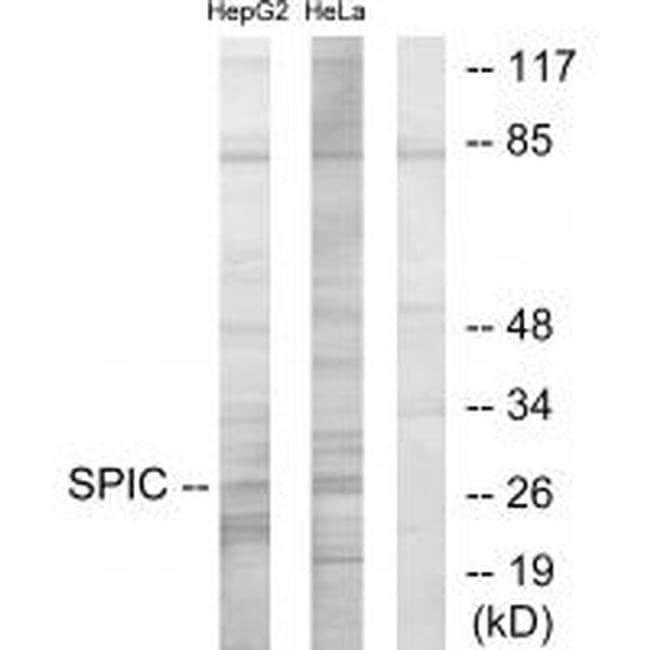 SPIC Rabbit anti-Human, Polyclonal, Invitrogen 100 µL; Unconjugated