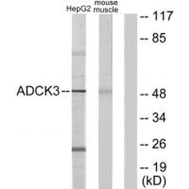 CABC1 Rabbit anti-Human, Mouse, Rat, Polyclonal, Invitrogen 100 µL;