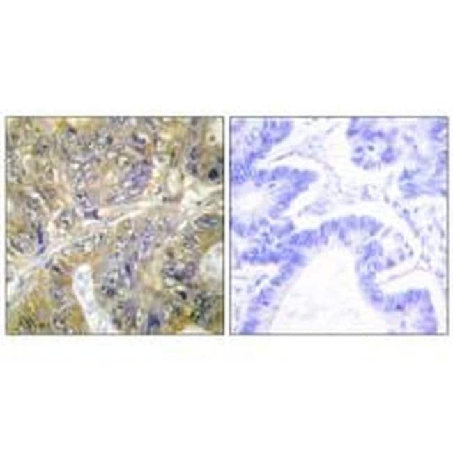 EPS8L3 Rabbit anti-Human, Polyclonal, Invitrogen 100 µL; Unconjugated