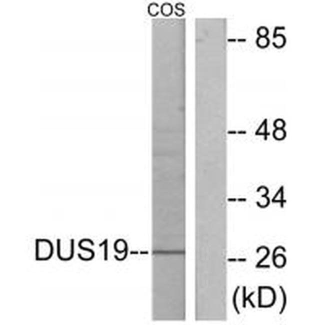 DUSP19 Rabbit anti-Human, Polyclonal, Invitrogen 100 µL; Unconjugated