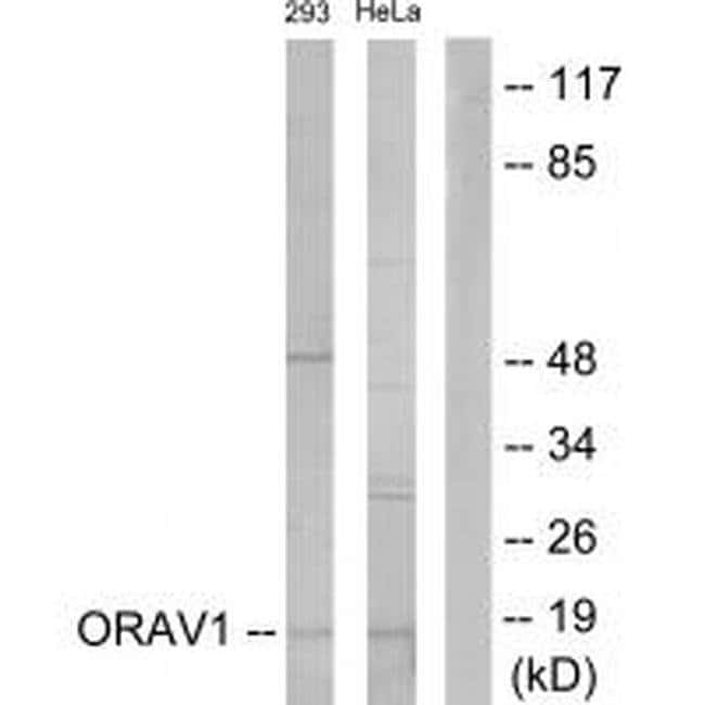 ORAOV1 Rabbit anti-Human, Polyclonal, Invitrogen 100 µL; Unconjugated