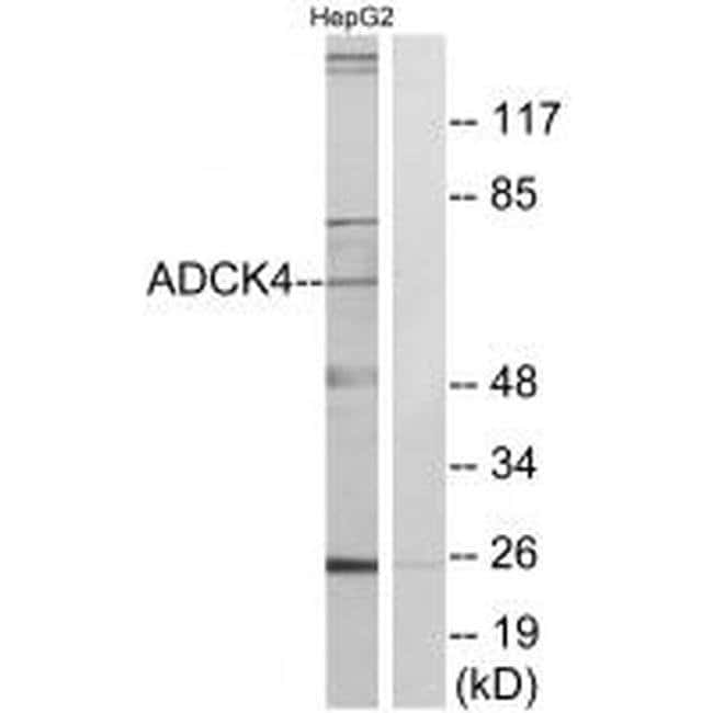 ADCK4 Rabbit anti-Human, Polyclonal, Invitrogen 100 µL; Unconjugated