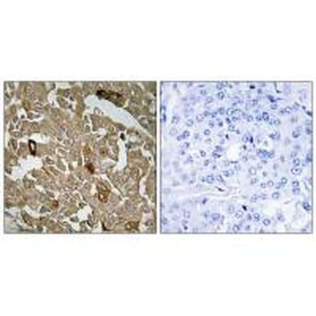 BTBD6 Rabbit anti-Human, Mouse, Polyclonal, Invitrogen 100 µL; Unconjugated