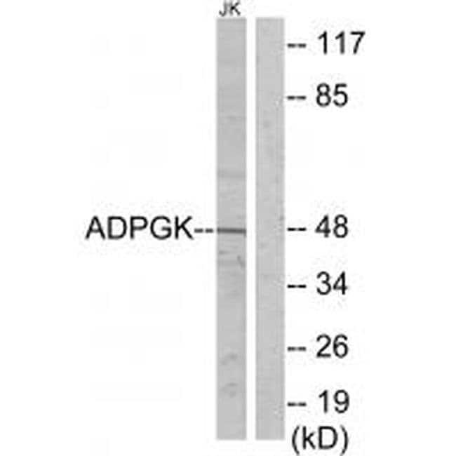 ADPGK Rabbit anti-Human, Mouse, Rat, Polyclonal, Invitrogen 100 µL;