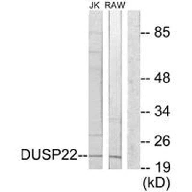 DUSP22 Rabbit anti-Human, Mouse, Polyclonal, Invitrogen 100 µL; Unconjugated
