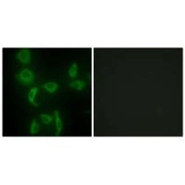 IARS2 Rabbit anti-Human, Mouse, Polyclonal, Invitrogen 100 µL; Unconjugated