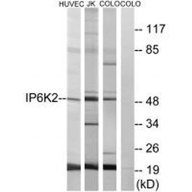 IP6K2 Rabbit anti-Human, Mouse, Rat, Polyclonal, Invitrogen 100 µL;