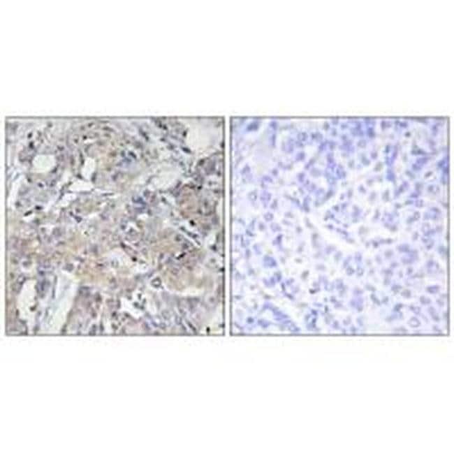 COL6A3 Rabbit anti-Human, Mouse, Polyclonal, Invitrogen 100 µL; Unconjugated
