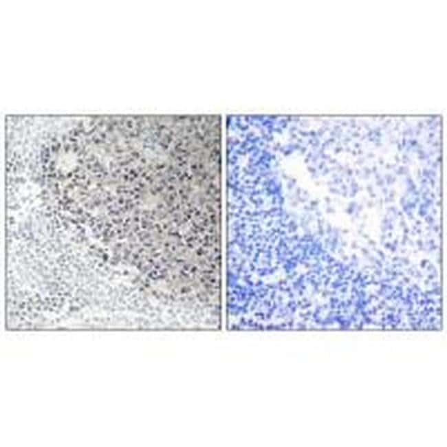 COL9A3 Rabbit anti-Human, Mouse, Polyclonal, Invitrogen 100 µL; Unconjugated