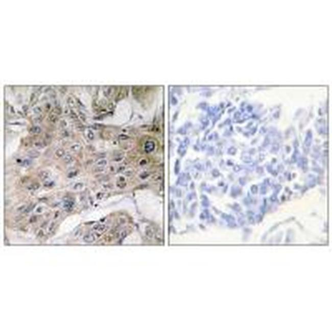 COX7A3 Rabbit anti-Human, Mouse, Rat, Polyclonal, Invitrogen 100 µL;