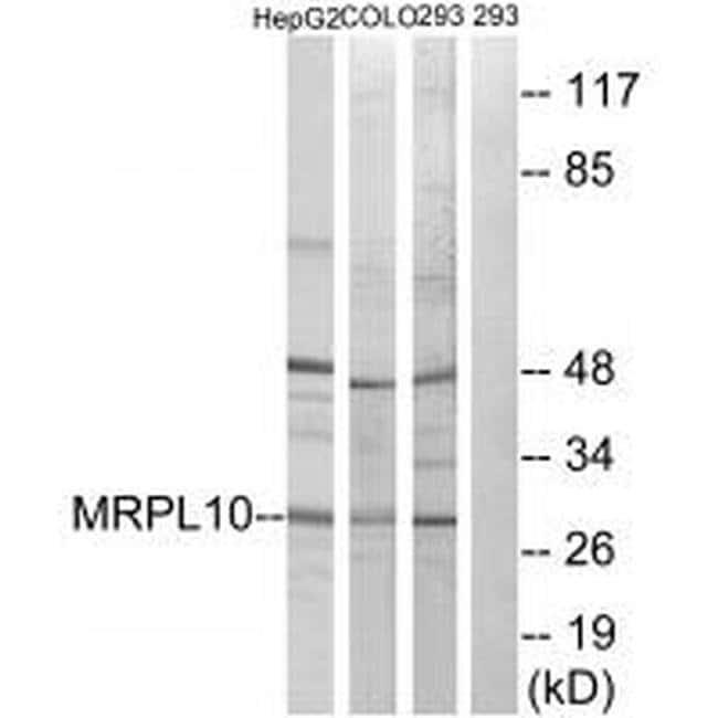 MRPL10 Rabbit anti-Human, Polyclonal, Invitrogen 100 µL; Unconjugated