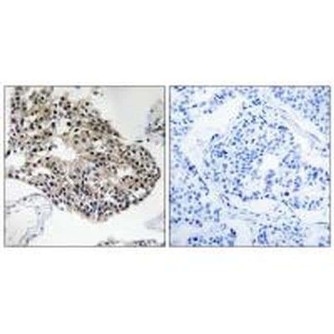 RPS25 Rabbit anti-Human, Mouse, Polyclonal, Invitrogen 100 µL; Unconjugated