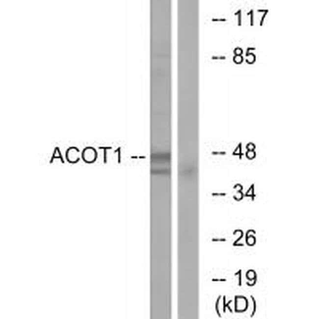 ACOT1 Rabbit anti-Human, Polyclonal, Invitrogen 100 µL; Unconjugated