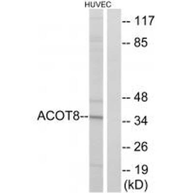 ACOT8 Rabbit anti-Human, Mouse, Rat, Polyclonal, Invitrogen 100 µL;