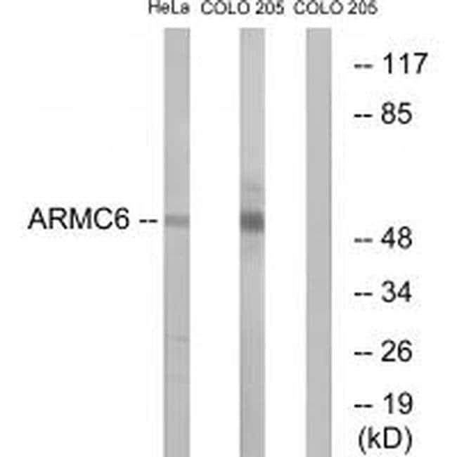 ARMC6 Rabbit anti-Human, Mouse, Rat, Polyclonal, Invitrogen 100 µL;