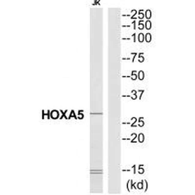 HOXA5 Rabbit anti-Human, Mouse, Rat, Polyclonal, Invitrogen 100 µL;