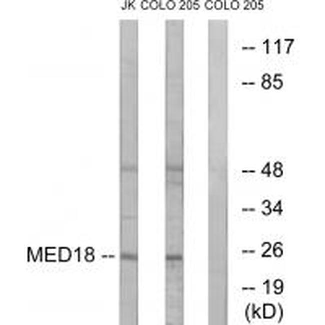 MED18 Rabbit anti-Human, Mouse, Polyclonal, Invitrogen 100 µL; Unconjugated