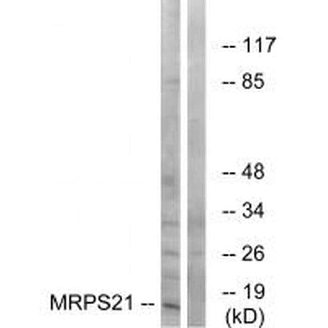 MRPS21 Rabbit anti-Human, Mouse, Rat, Polyclonal, Invitrogen 100 µL;