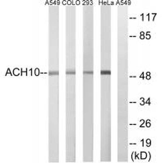 CHRNA10 Rabbit anti-Human, Mouse, Polyclonal, Invitrogen 100 µL; Unconjugated