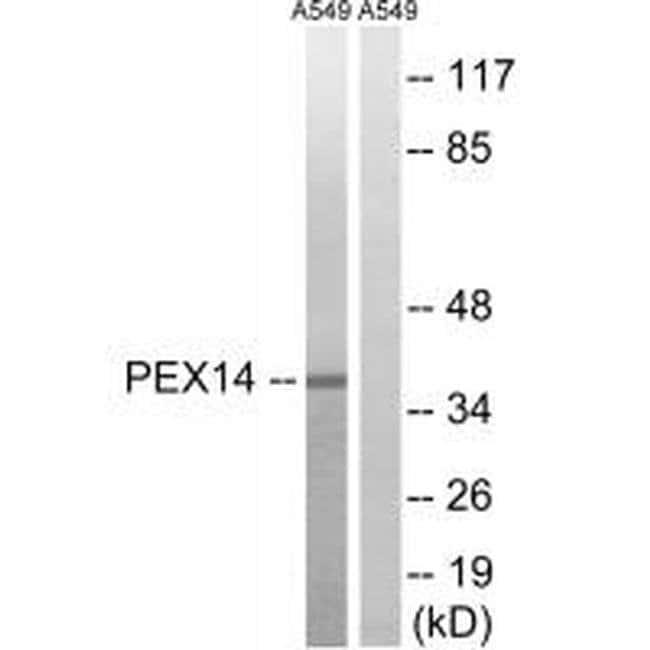 PEX14 Rabbit anti-Human, Mouse, Polyclonal, Invitrogen 100 µL; Unconjugated