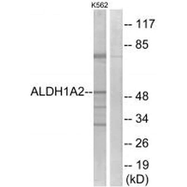 ALDH1A2 Rabbit anti-Human, Mouse, Rat, Polyclonal, Invitrogen 100 µL;
