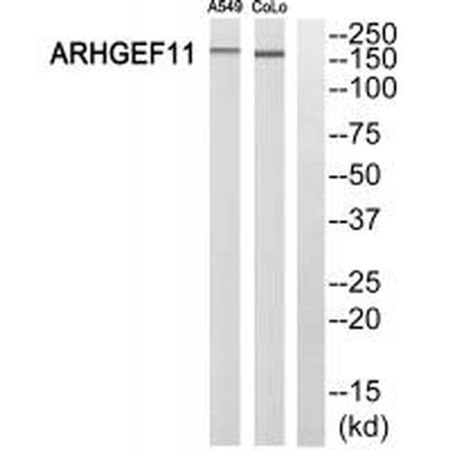 ARHGEF11 Rabbit anti-Human, Polyclonal, Invitrogen 100 µL; Unconjugated