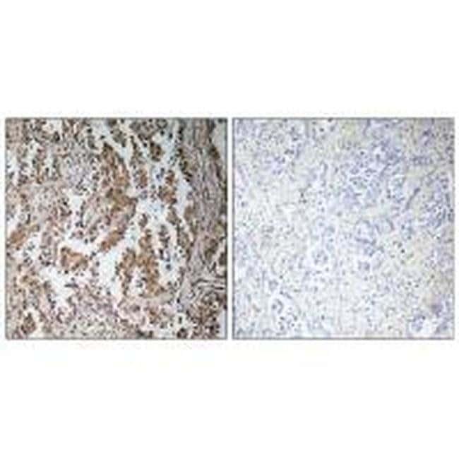 TBPL2 Rabbit anti-Human, Polyclonal, Invitrogen 100 µL; Unconjugated