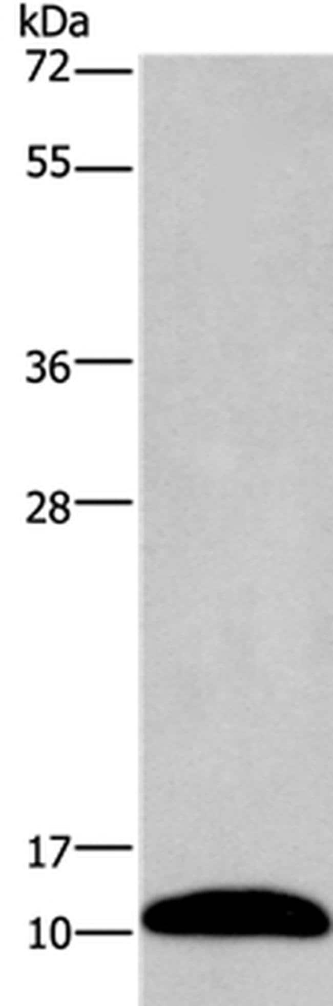 PCP4 Rabbit anti-Human, Mouse, Polyclonal, Invitrogen 100 µL; Unconjugated