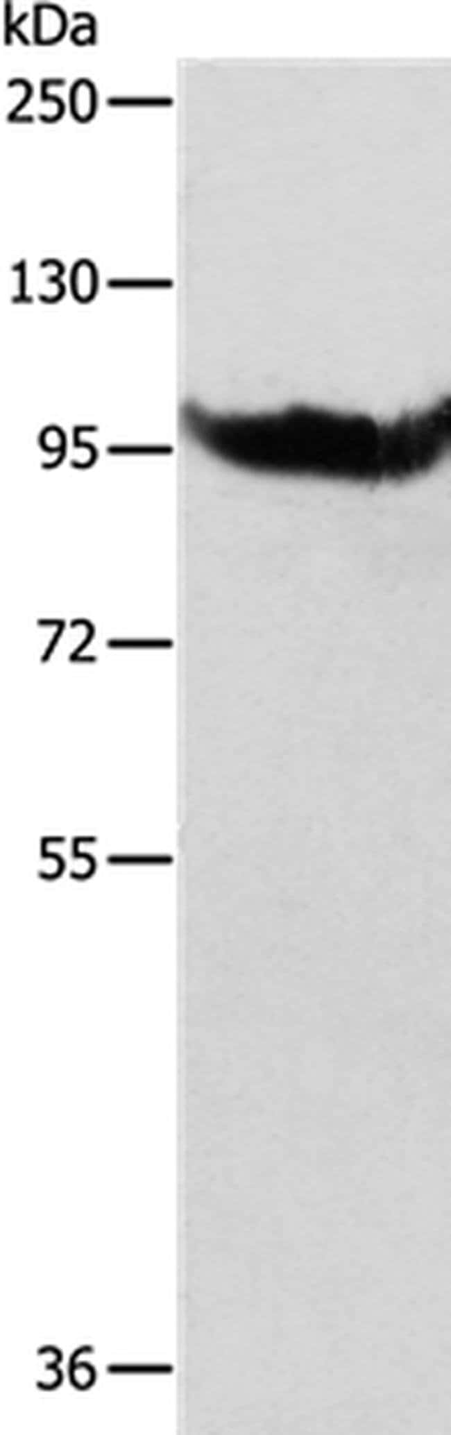 AARS2 Rabbit anti-Human, Mouse, Polyclonal, Invitrogen 100 µL; Unconjugated