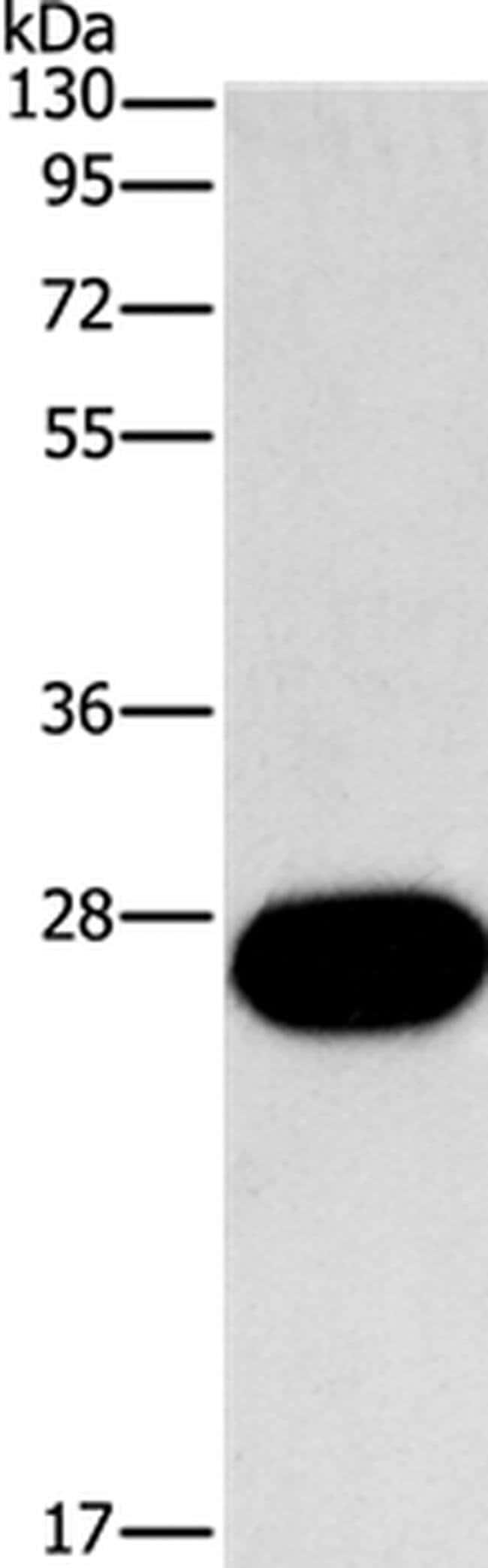 FGF9 Rabbit anti-Human, Mouse, Rat, Polyclonal, Invitrogen 100 µL;
