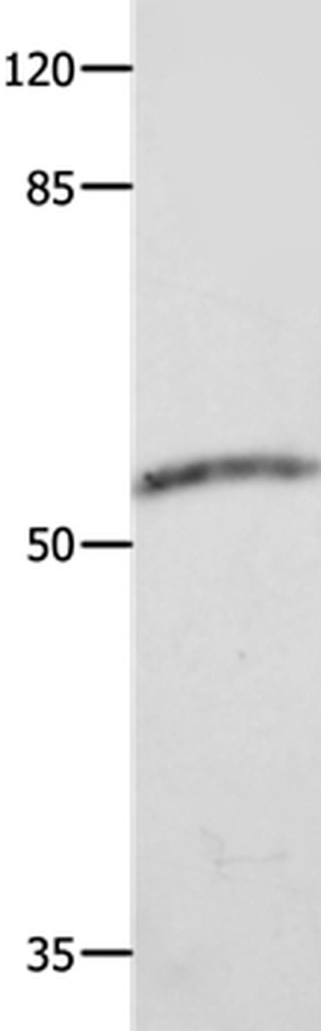 CAP2 Rabbit anti-Human, Polyclonal, Invitrogen 100 µL; Unconjugated