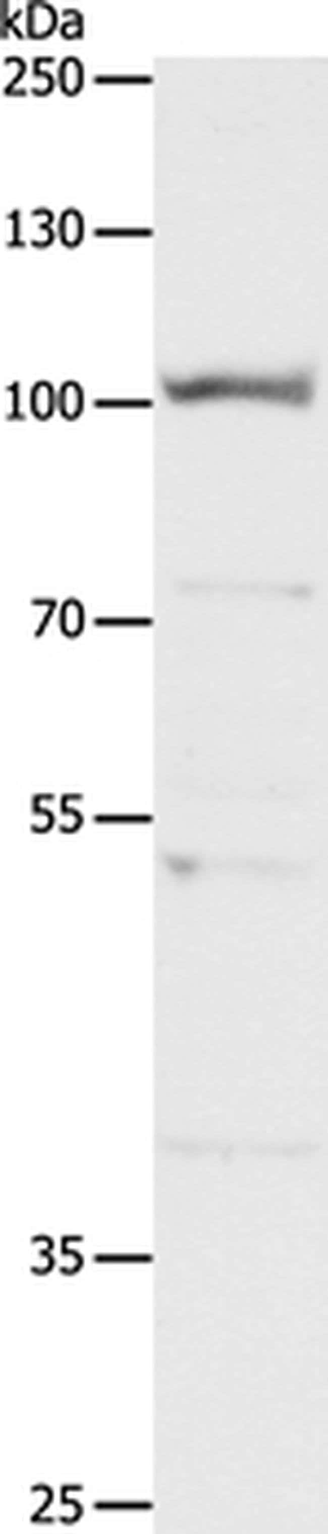 CLCA4 Rabbit anti-Human, Polyclonal, Invitrogen 100 µL; Unconjugated