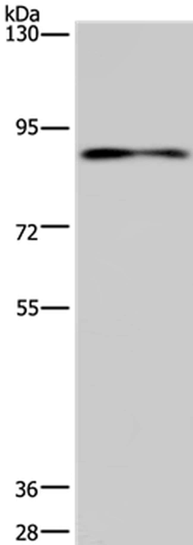 CNGA3 Rabbit anti-Human, Mouse, Polyclonal, Invitrogen 100 µL; Unconjugated