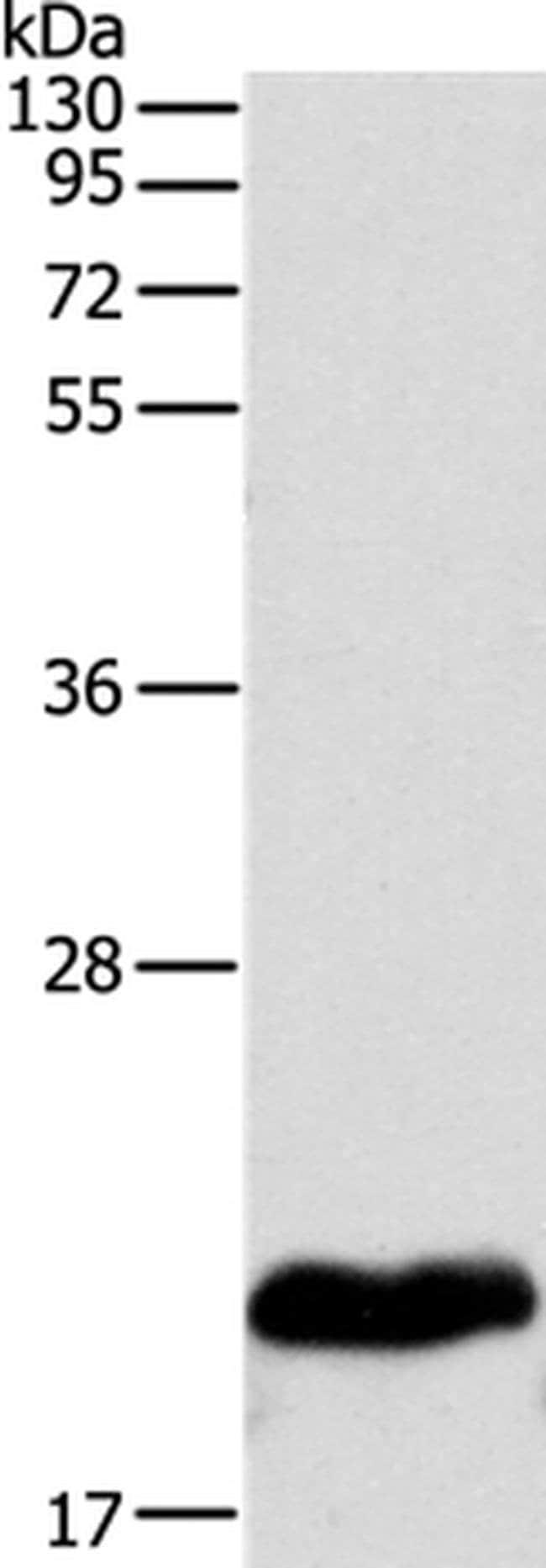 MYL2 Rabbit anti-Human, Mouse, Polyclonal, Invitrogen 100 µL; Unconjugated
