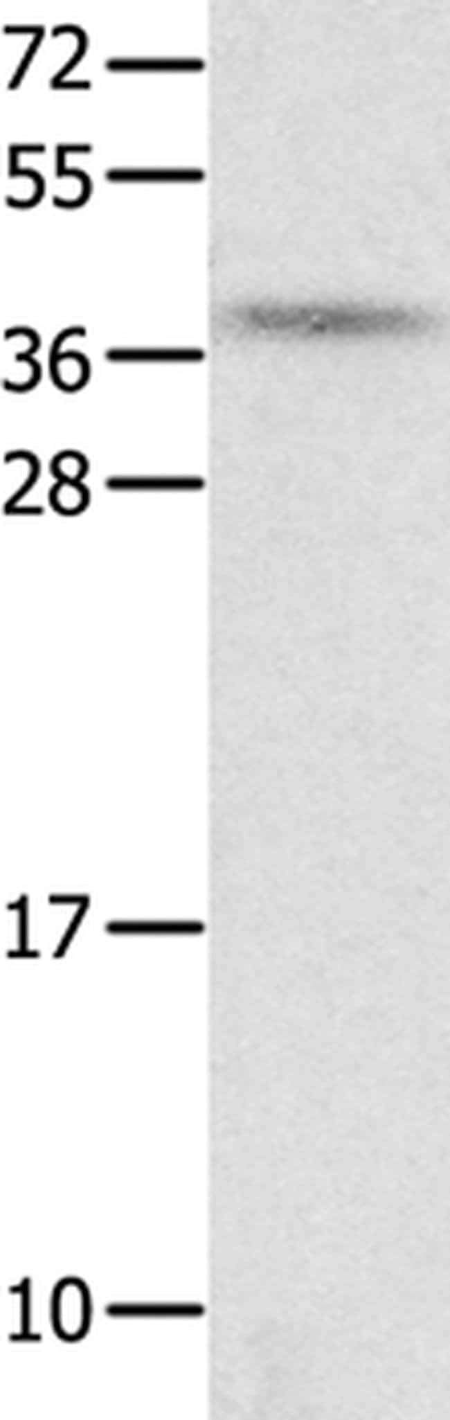 NTS Rabbit anti-Human, Polyclonal, Invitrogen 100 µL; Unconjugated