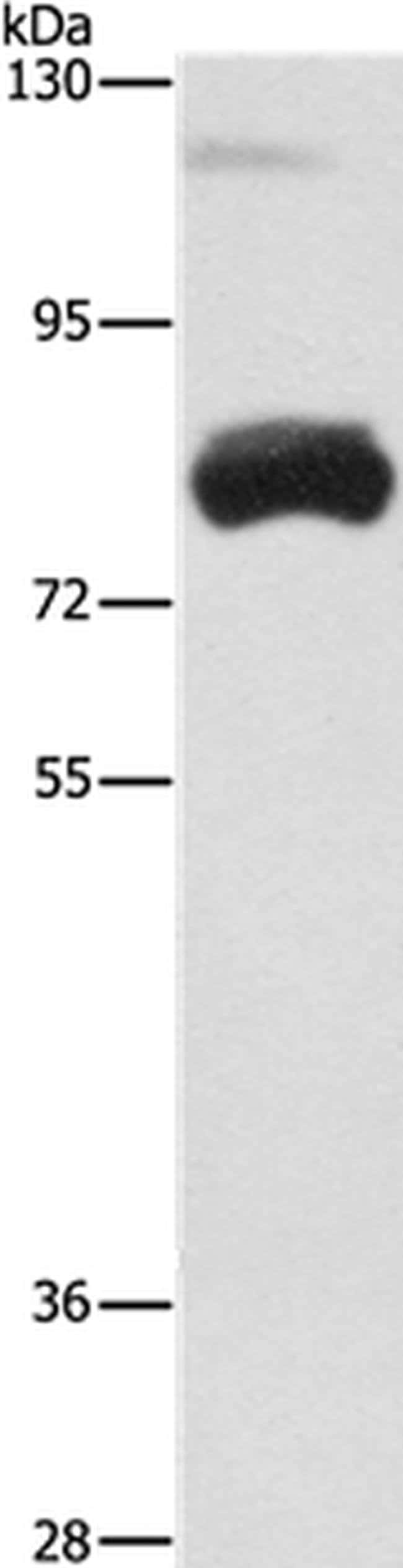 OAS2 Rabbit anti-Human, Mouse, Polyclonal, Invitrogen 100 µL; Unconjugated