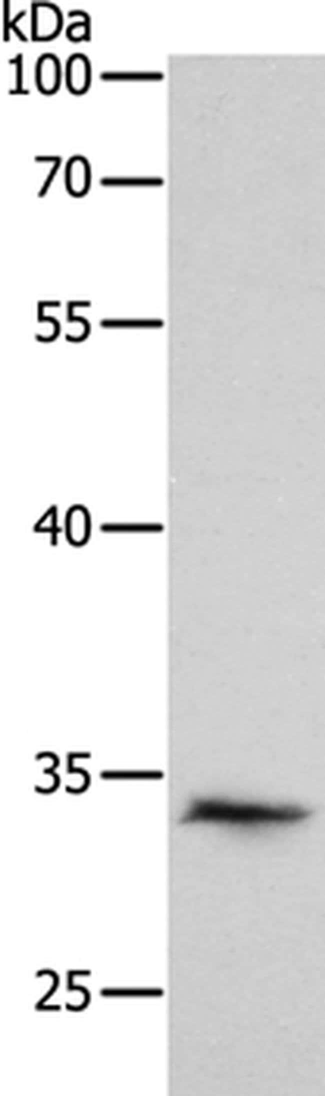 Pirh2 Rabbit anti-Human, Polyclonal, Invitrogen 100 µL; Unconjugated