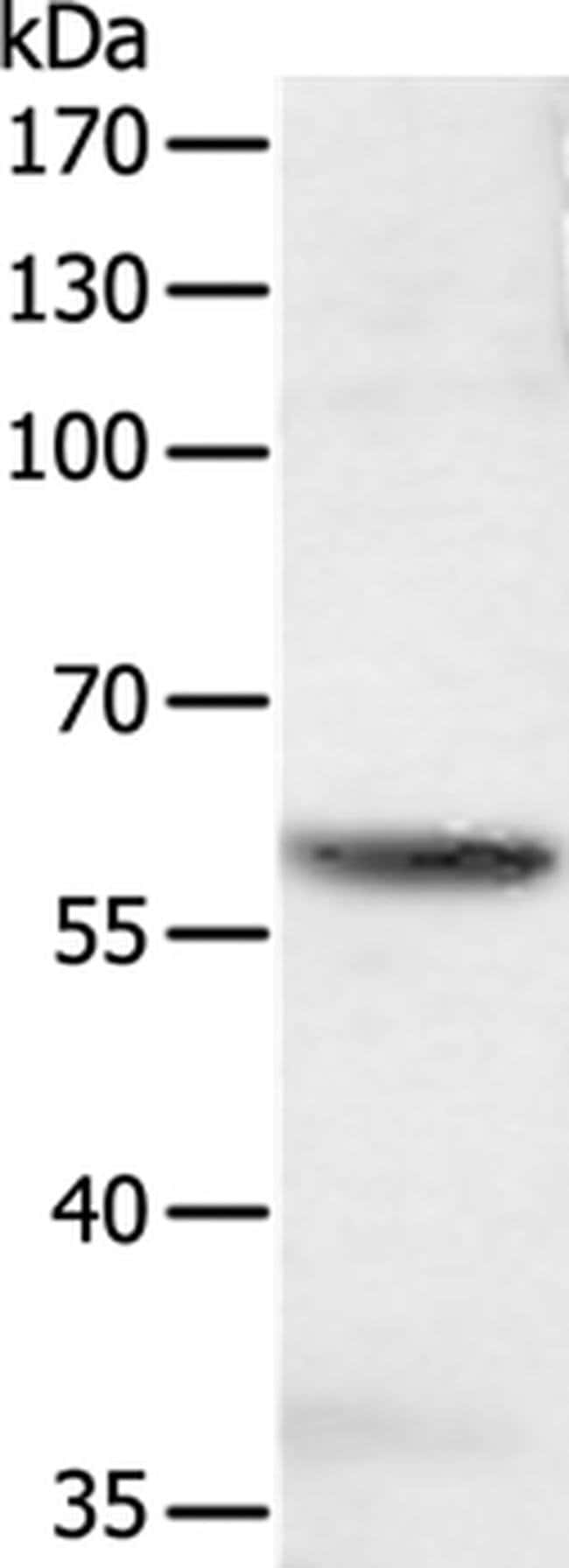 SOCS6 Rabbit anti-Human, Mouse, Polyclonal, Invitrogen 100 µL; Unconjugated