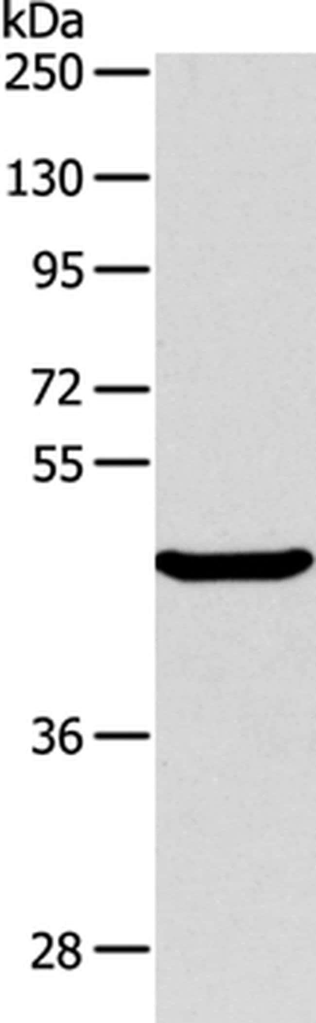 ABH1 Rabbit anti-Human, Mouse, Polyclonal, Invitrogen 100 µL; Unconjugated