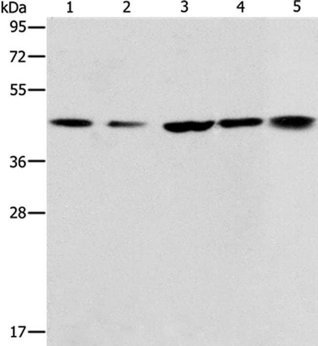 ACAA2 Rabbit anti-Human, Mouse, Polyclonal, Invitrogen 100 µL; Unconjugated